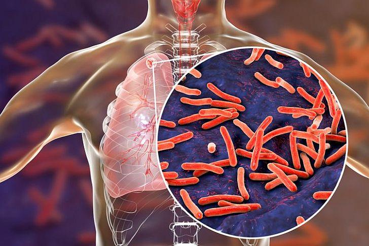tuberkulioze728.jpg